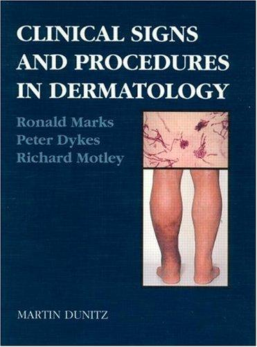 Clinical Signs and Procedures in Dermatology
