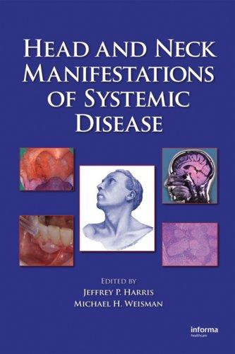 Head and Neck Manifestations of Systemic Disease by